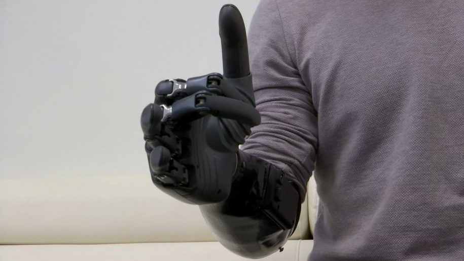 An affordable, capable and natural robotic prosthetic